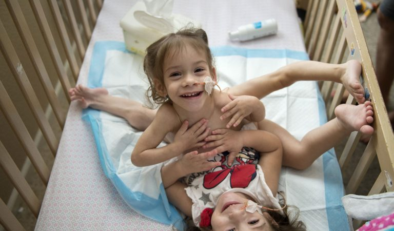 Conjoined twins get aid for separation surgery